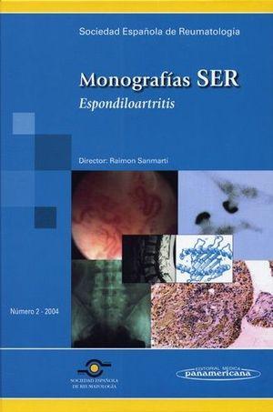 MONOGRAFIAS SER ESPONDILOARTRITIS NUMERO 2 2004